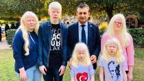 Milletvekili  Bulut, Albinoların sorunlarını dinledi