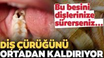 Nasıl önlem alınmalı? Neler faydalı? İşte diş çürümesini önleyen besin