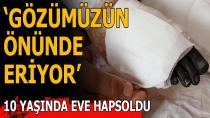 Adana'da, genetik rahatsızlığı nedeniyle bacağında açık yaralar oluşan ve ayağında kangren meydana gelen 10 yaşındaki Ekin Kaytan 1,5 yıldır evinden dışarı çıkamıyor.